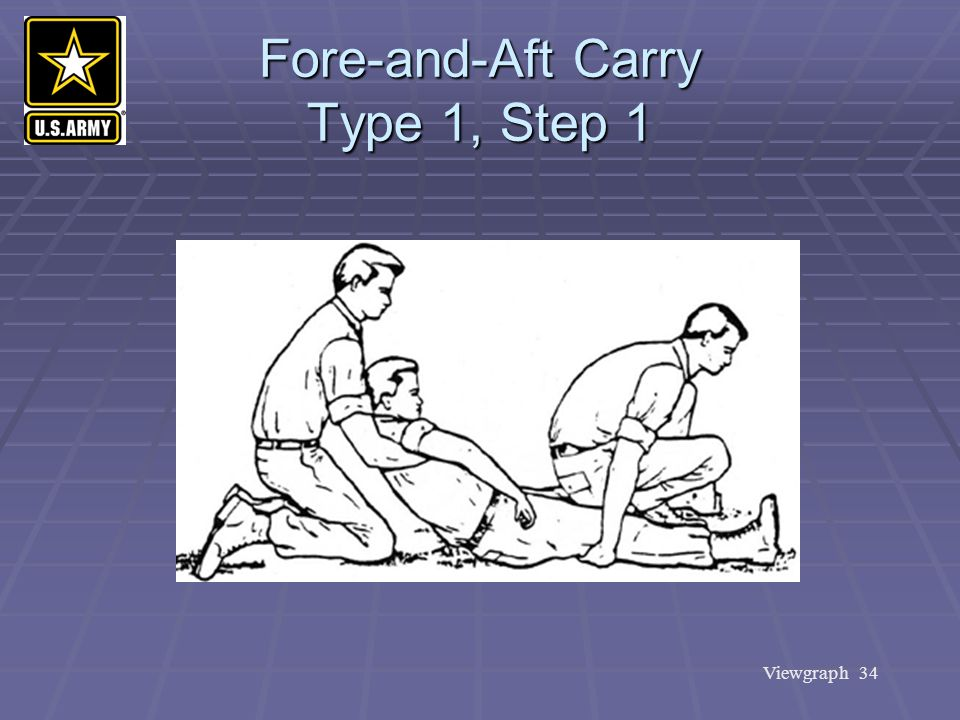 Fore-and-Aft Carry Type 1, Step 1