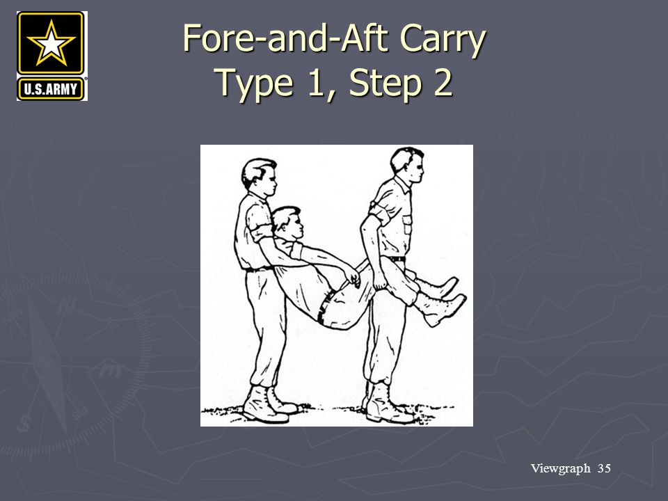 Fore-and-Aft Carry Type 1, Step 2