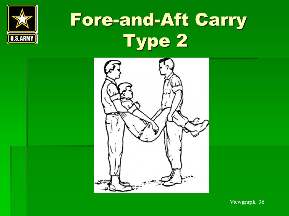 Fore-and-Aft Carry Type 2