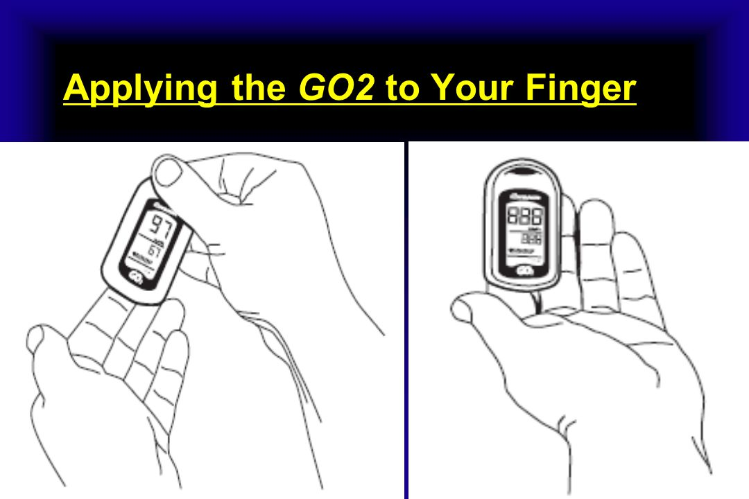Applying the GO2 to Your Finger