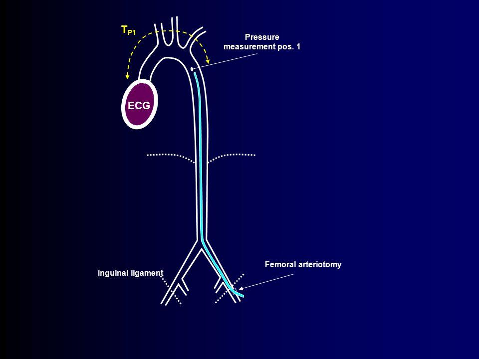 TP1 ECG Pressure measurement pos. 1 Femoral arteriotomy