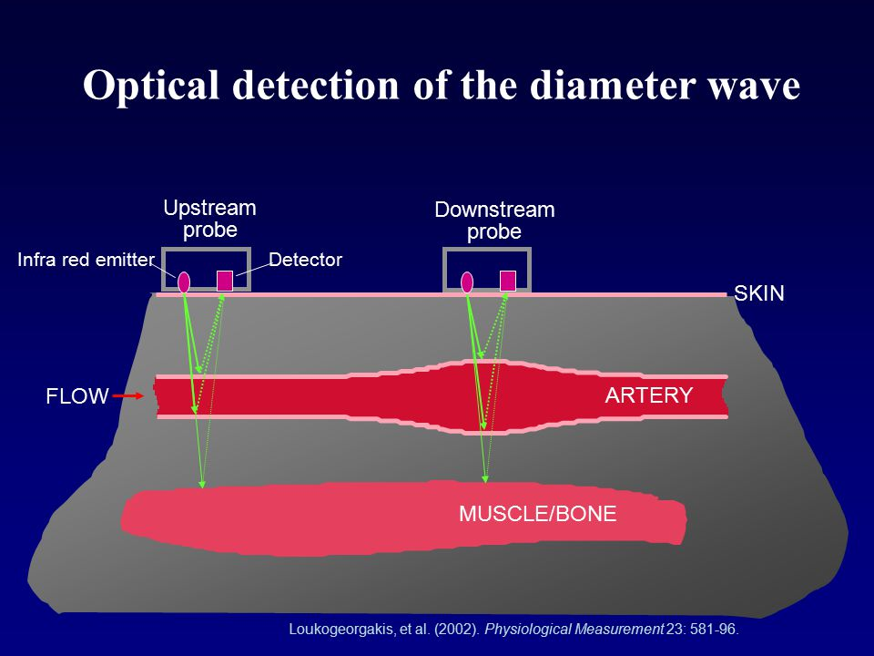Optical detection of the diameter wave