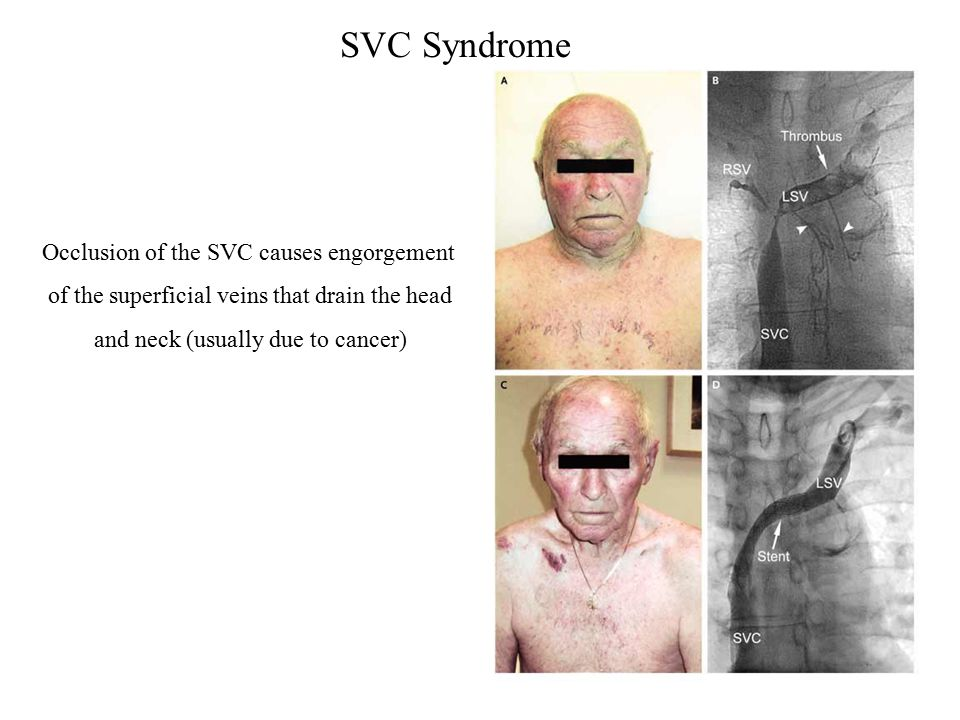SVC Syndrome Occlusion of the SVC causes engorgement