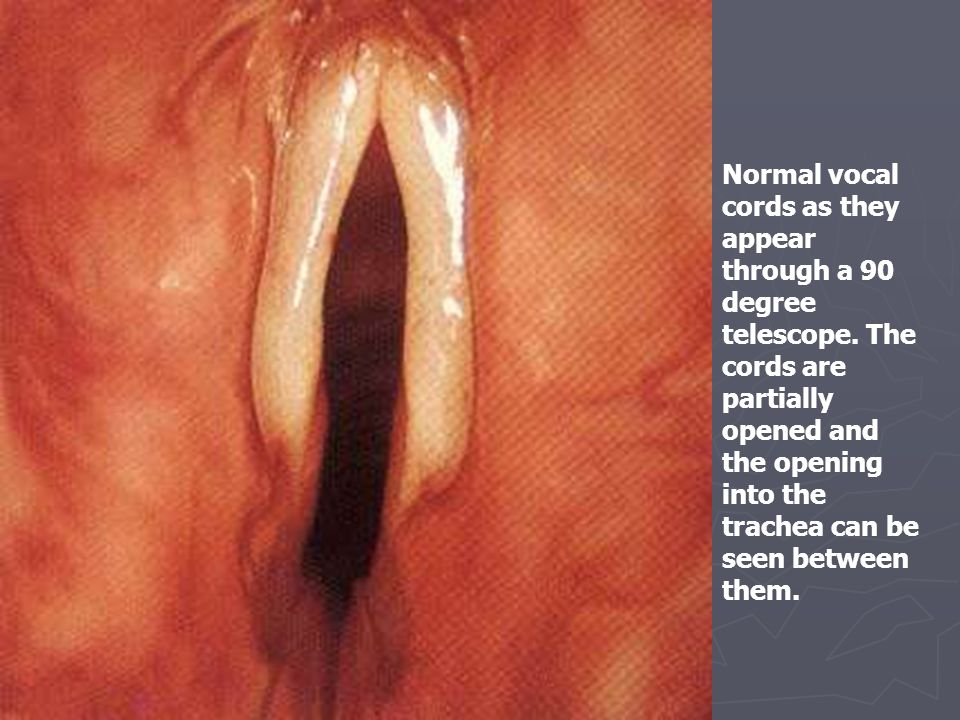 Normal vocal cords as they appear through a 90 degree telescope