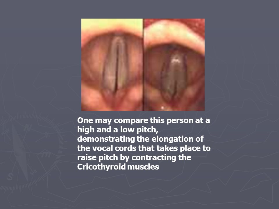 One may compare this person at a high and a low pitch, demonstrating the elongation of the vocal cords that takes place to raise pitch by contracting the Cricothyroid muscles