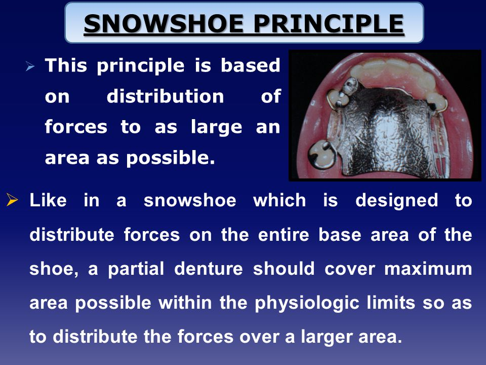 SNOWSHOE PRINCIPLE This principle is based on distribution of forces to as large an area as possible.