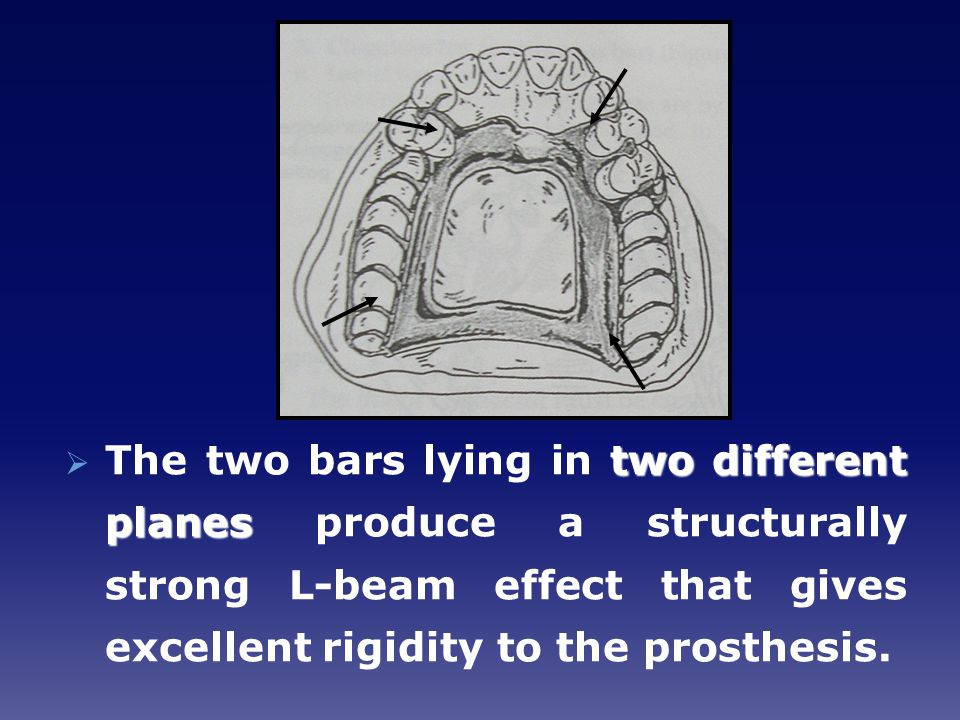 The two bars lying in two different planes produce a structurally strong L-beam effect that gives excellent rigidity to the prosthesis.