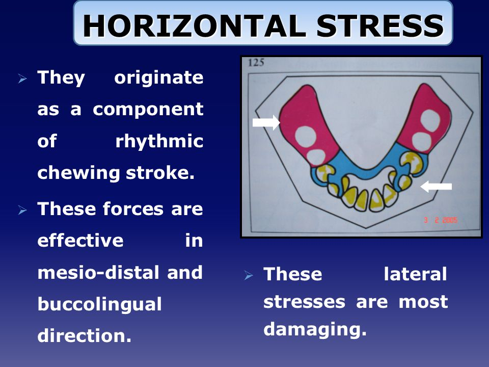 HORIZONTAL STRESS They originate as a component of rhythmic chewing stroke. These forces are effective in mesio-distal and buccolingual direction.