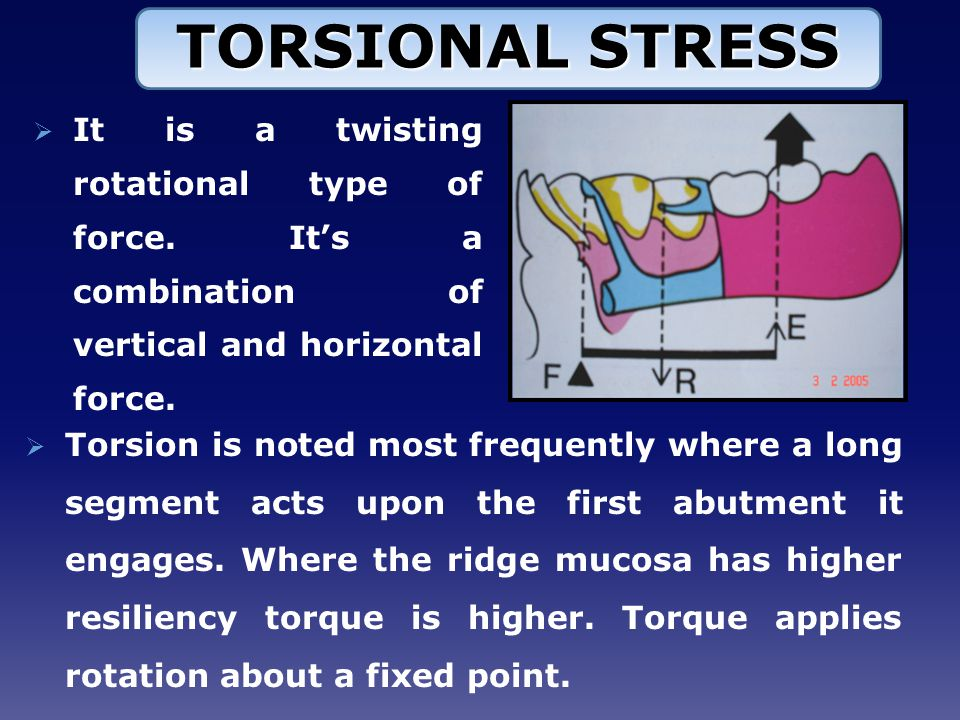 TORSIONAL STRESS It is a twisting rotational type of force. It's a combination of vertical and horizontal force.