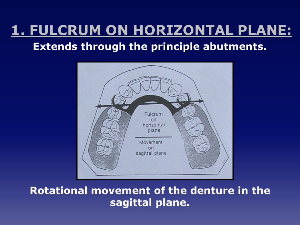 1. FULCRUM ON HORIZONTAL PLANE: