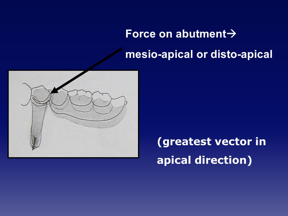 mesio-apical or disto-apical