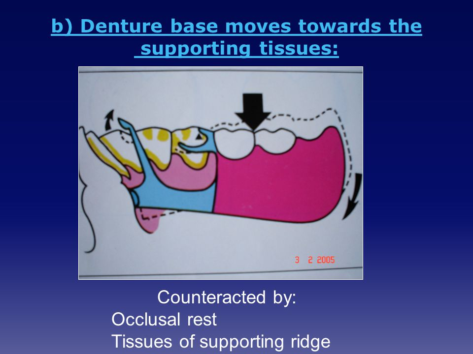 b) Denture base moves towards the