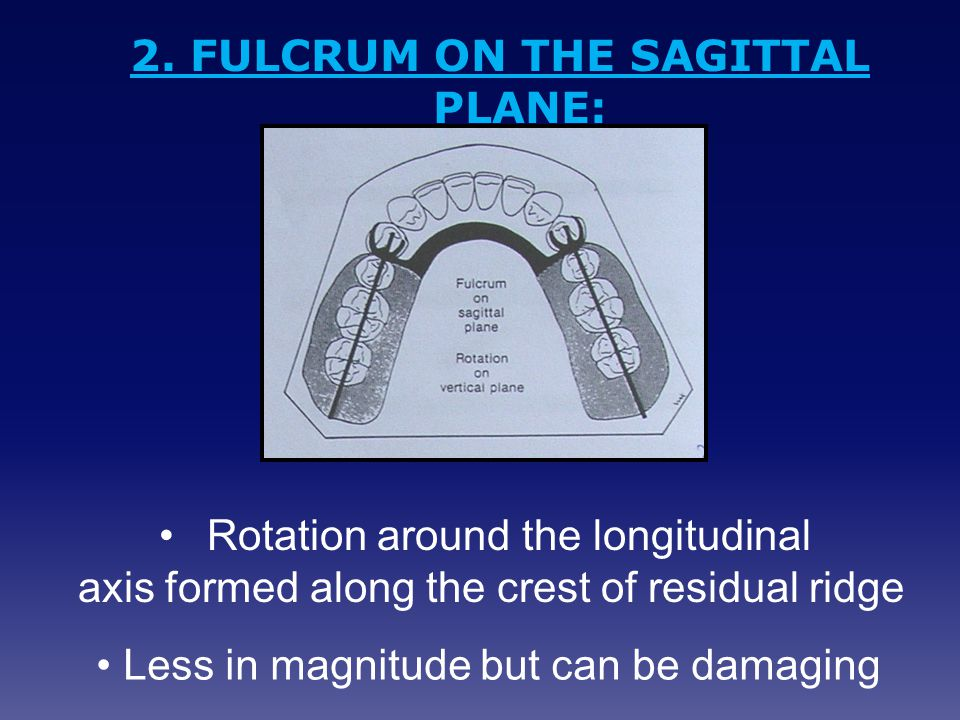 2. FULCRUM ON THE SAGITTAL PLANE: