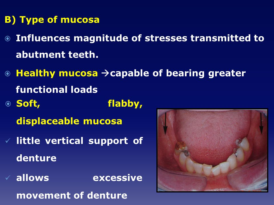 B) Type of mucosa Influences magnitude of stresses transmitted to abutment teeth. Healthy mucosa capable of bearing greater functional loads.