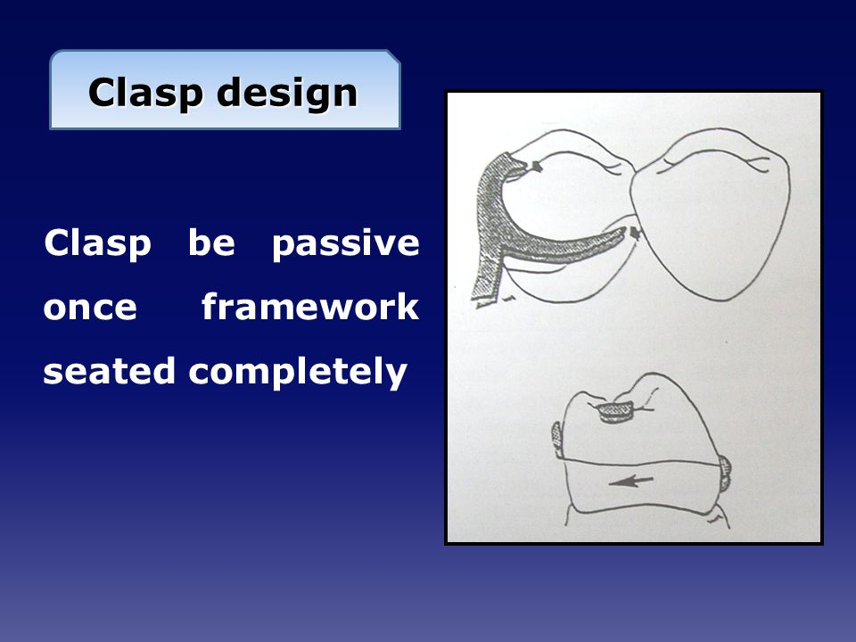 Clasp design Clasp be passive once framework seated completely