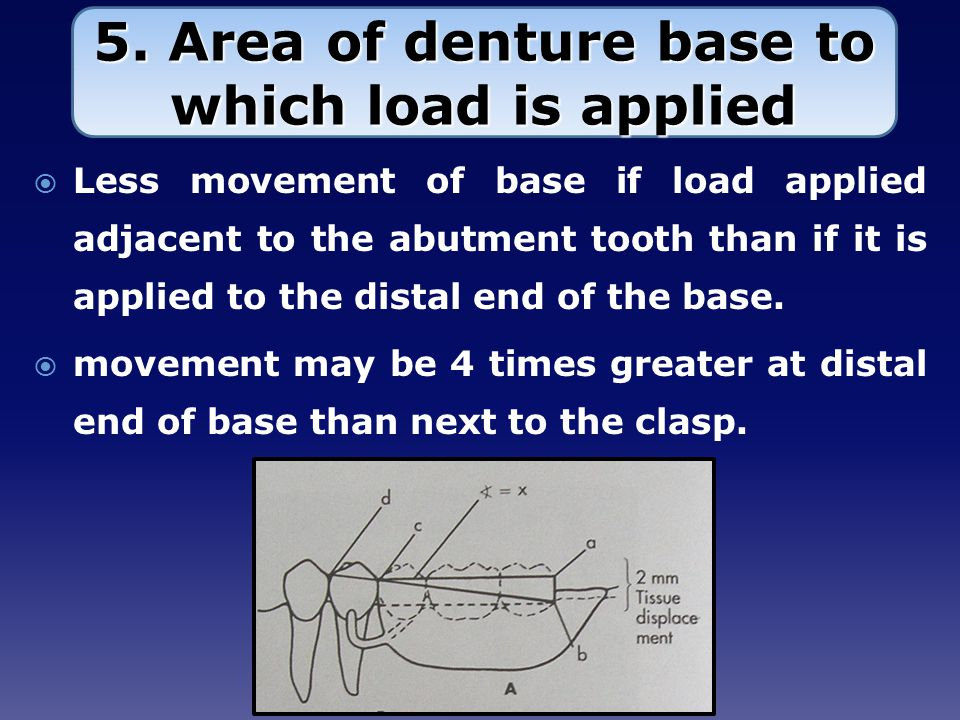 5. Area of denture base to which load is applied