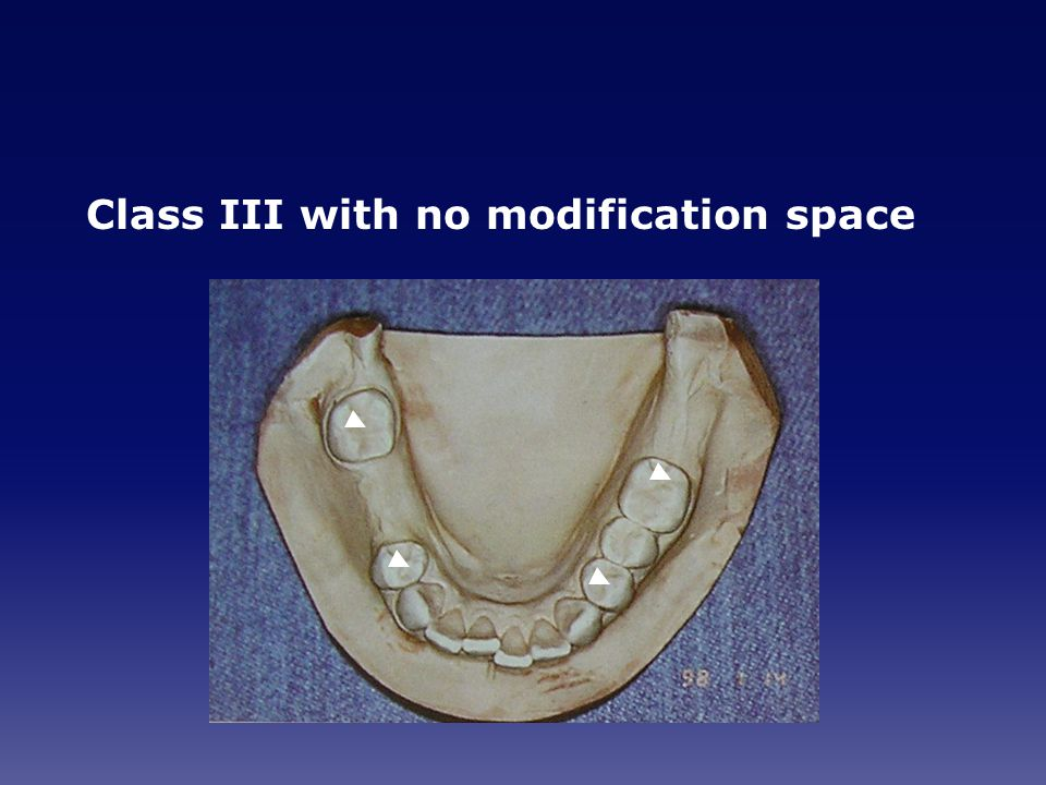 Class III with no modification space