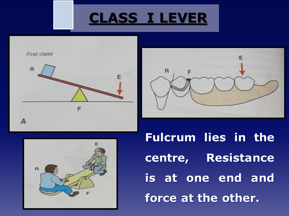 CLASS I LEVER Fulcrum lies in the centre, Resistance is at one end and force at the other.