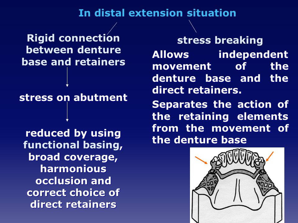In distal extension situation