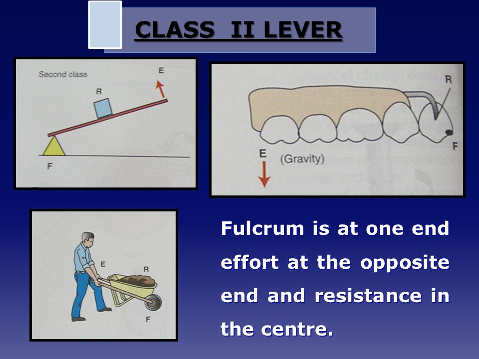 CLASS II LEVER Fulcrum is at one end effort at the opposite end and resistance in the centre.