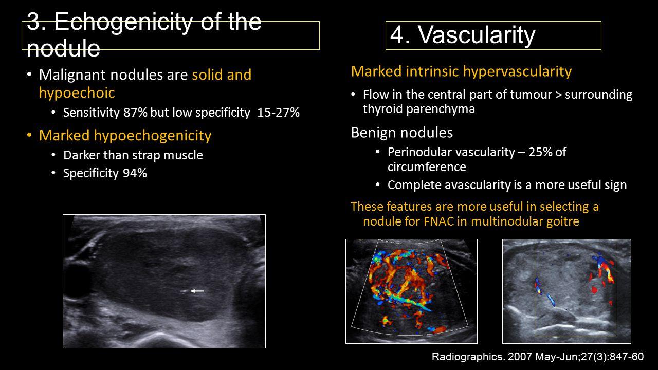 3. Echogenicity of the nodule