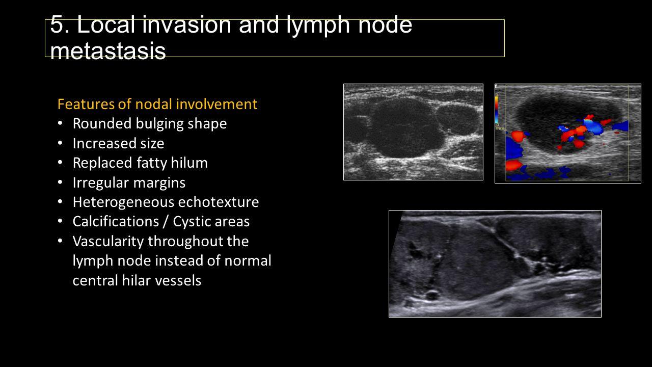 5. Local invasion and lymph node metastasis