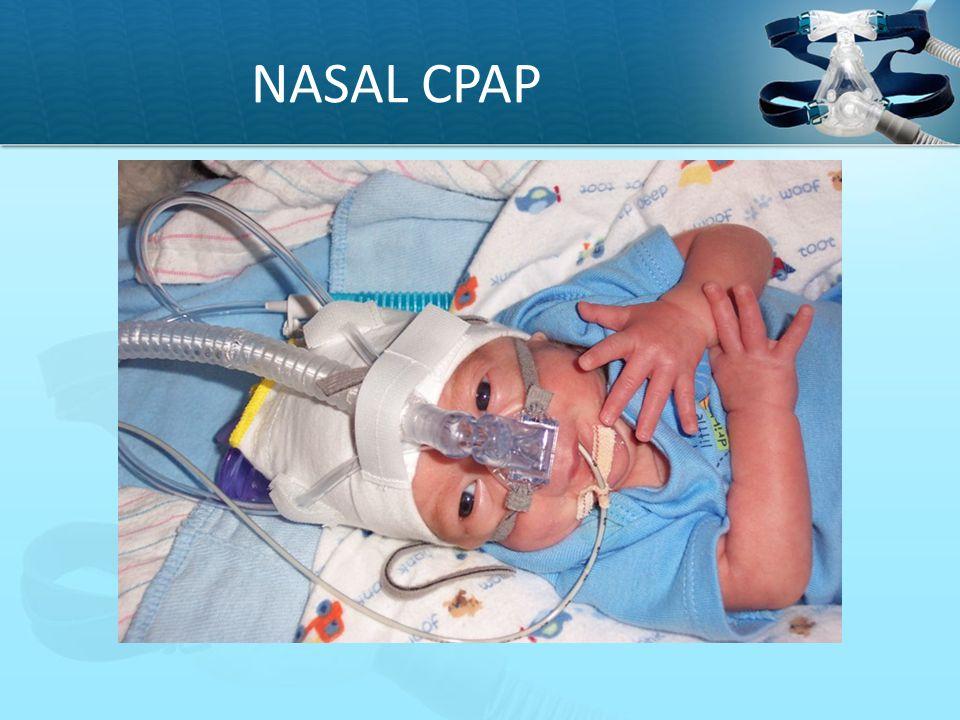 NASAL CPAP