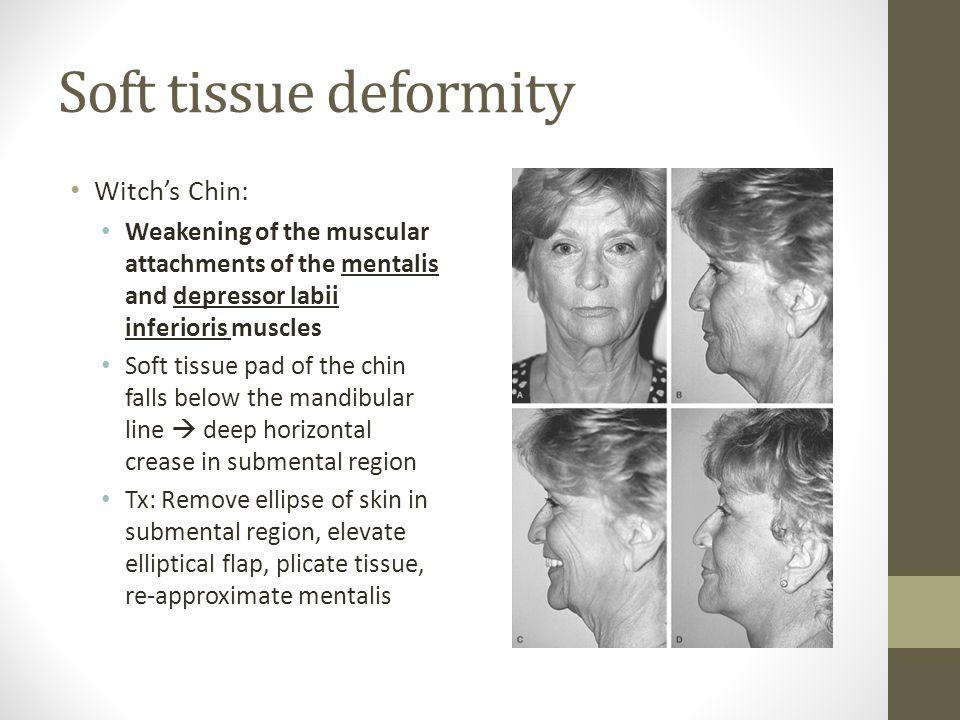 Soft tissue deformity Witch's Chin: