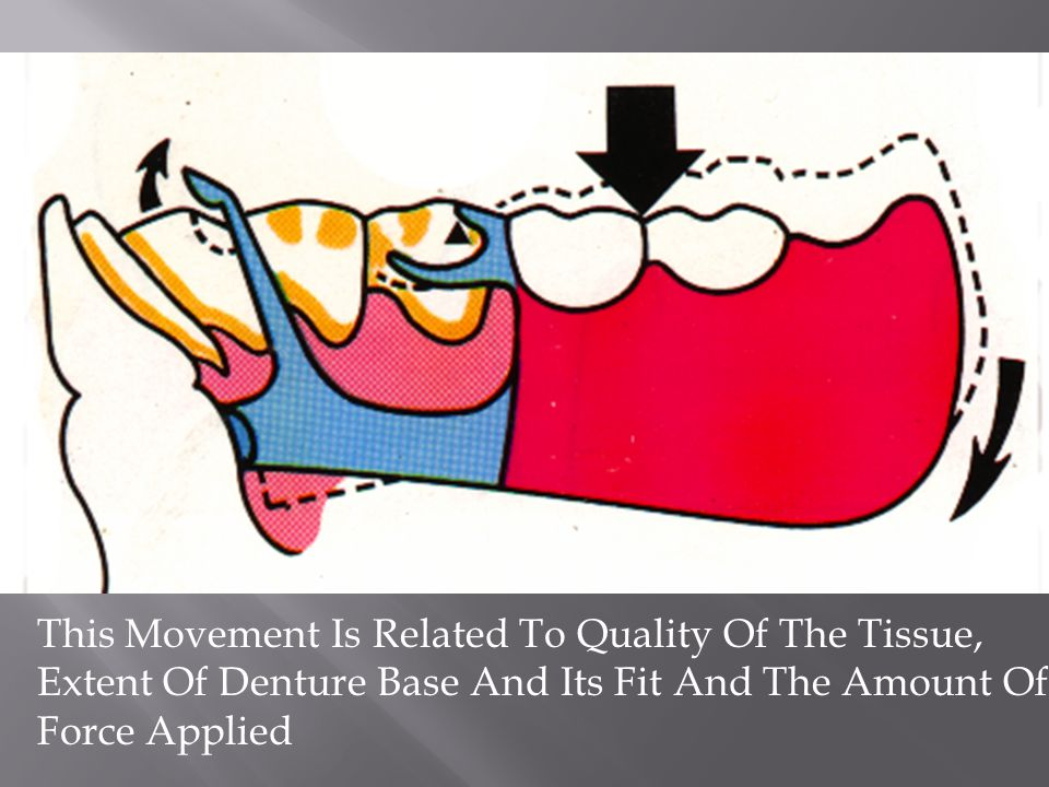 F This Movement Is Related To Quality Of The Tissue, Extent Of Denture Base And Its Fit And The Amount Of Force Applied.