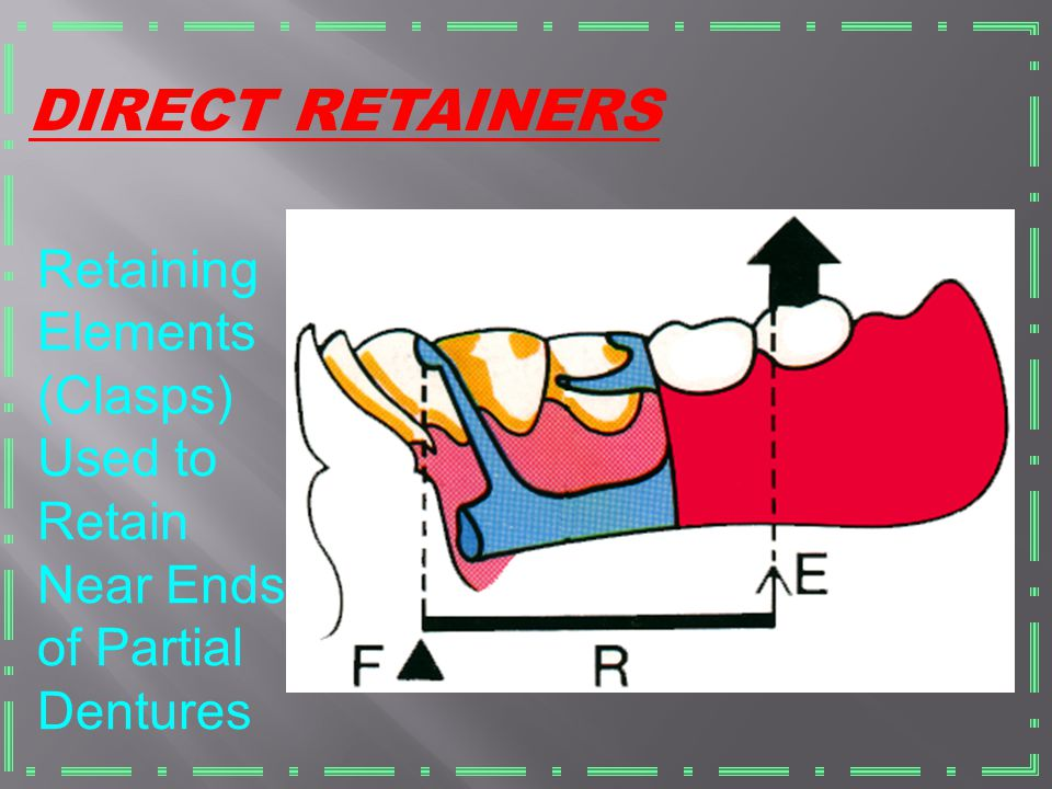DIRECT RETAINERS Retaining Elements (Clasps) Used to Retain Near Ends of Partial Dentures
