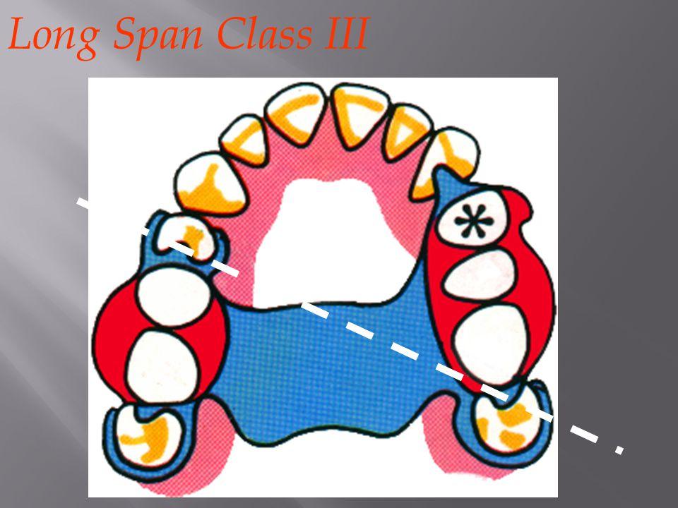 Long Span Class III