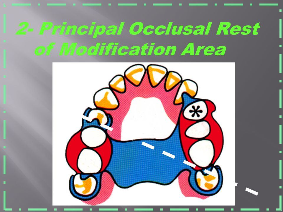 2- Principal Occlusal Rest of Modification Area