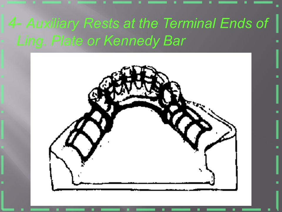 4- Auxiliary Rests at the Terminal Ends of Ling. Plate or Kennedy Bar