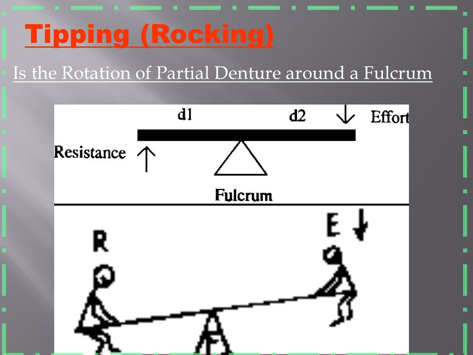 Tipping (Rocking) Is the Rotation of Partial Denture around a Fulcrum
