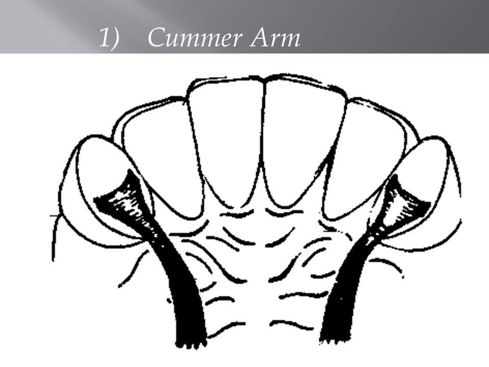 1) Cummer Arm