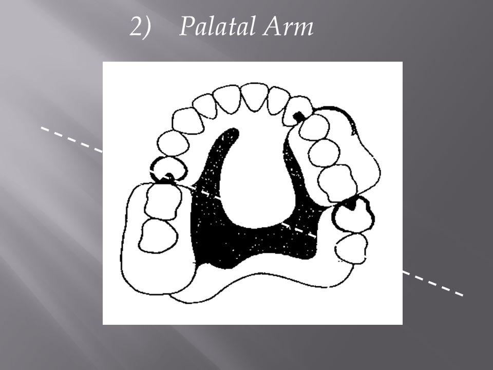 2) Palatal Arm