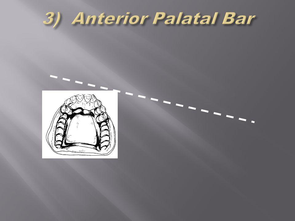 3) Anterior Palatal Bar