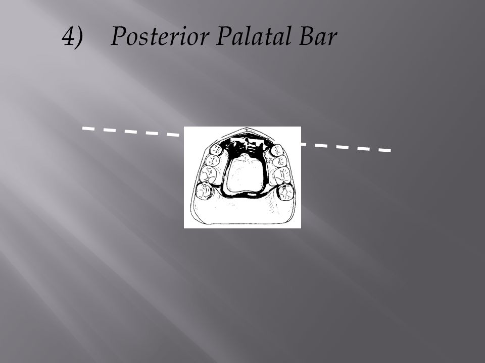 4) Posterior Palatal Bar