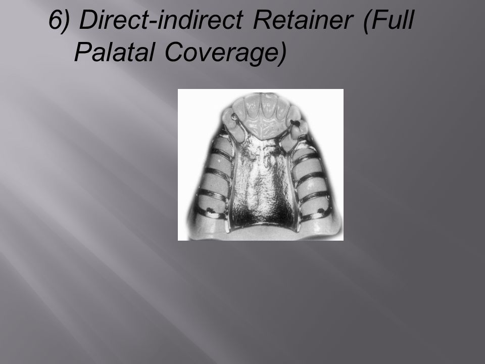 6) Direct-indirect Retainer (Full Palatal Coverage)
