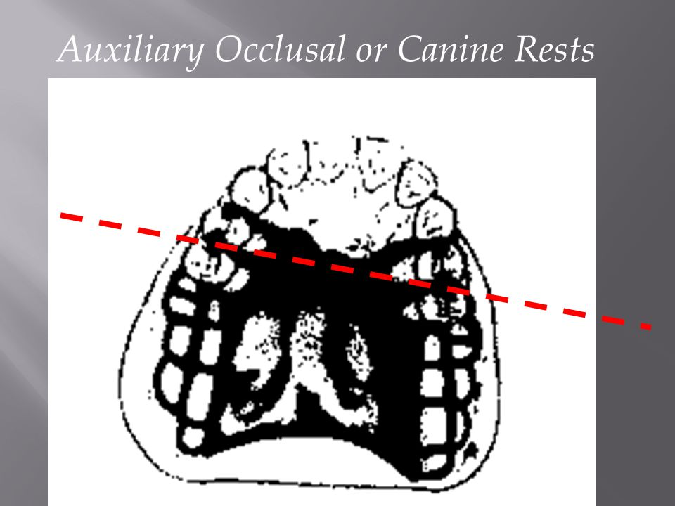 Auxiliary Occlusal or Canine Rests