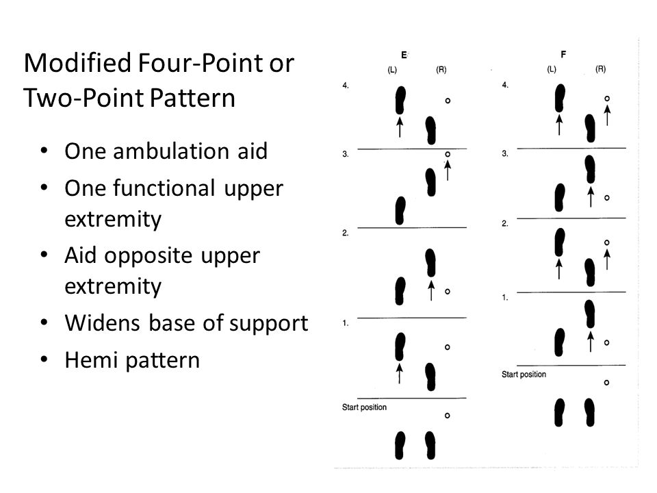 Modified Four-Point or Two-Point Pattern