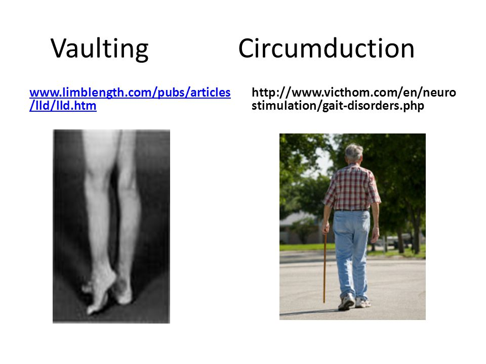 Vaulting Circumduction