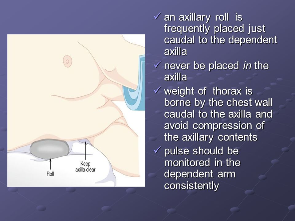 an axillary roll is frequently placed just caudal to the dependent axilla