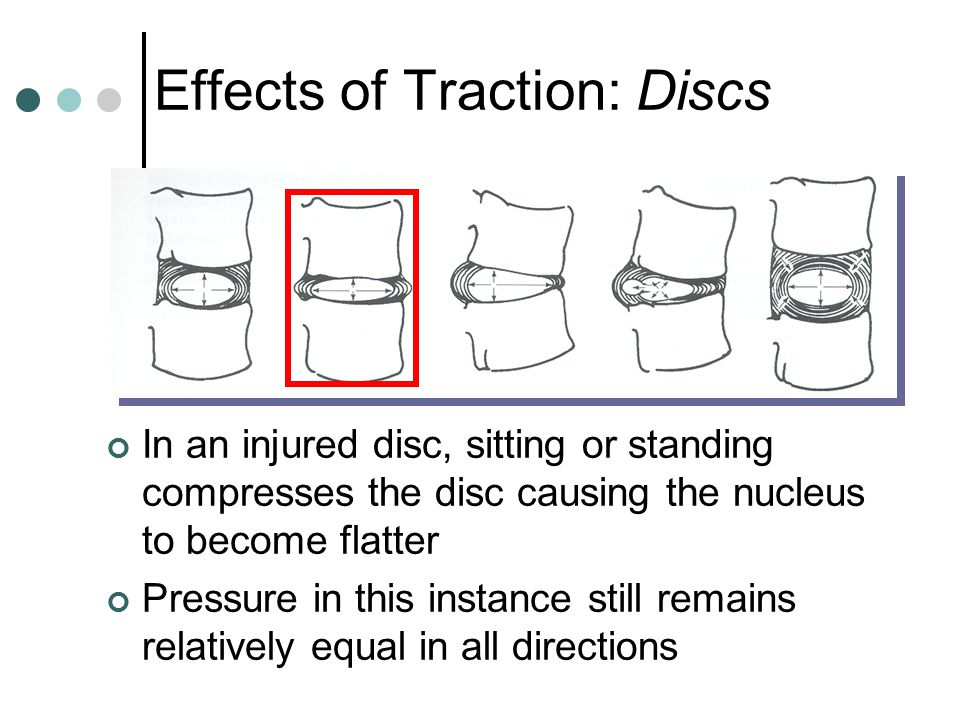 Effects of Traction: Discs
