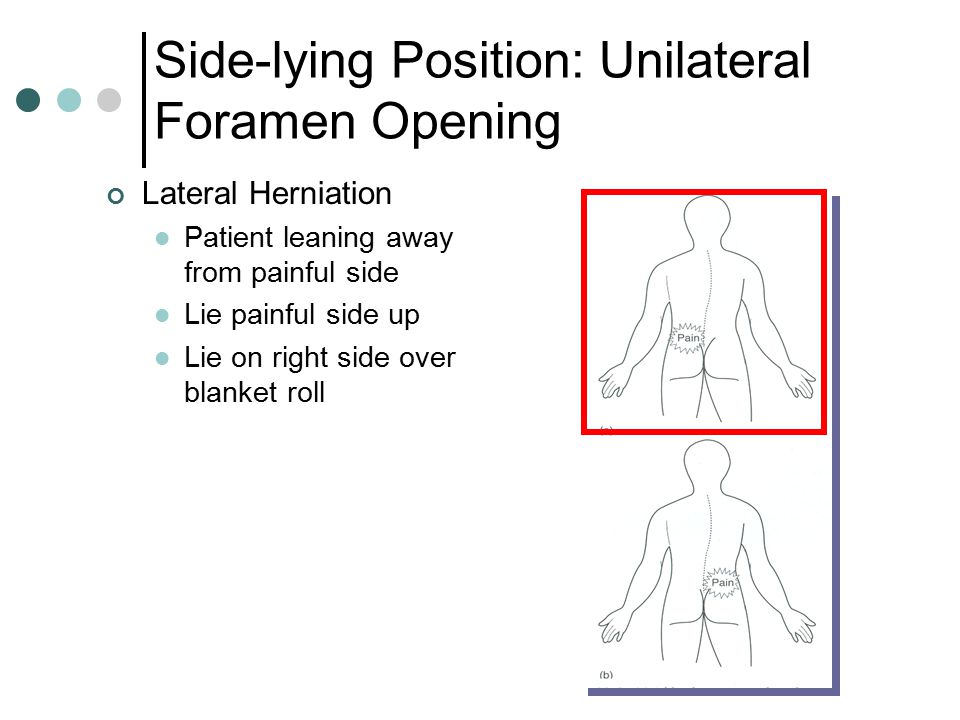 Side-lying Position: Unilateral Foramen Opening