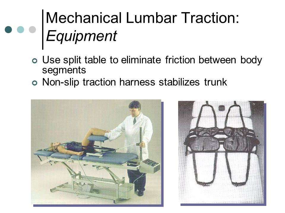 Mechanical Lumbar Traction: Equipment