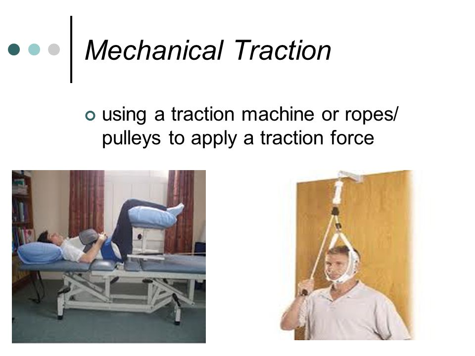 Mechanical Traction using a traction machine or ropes/ pulleys to apply a traction force