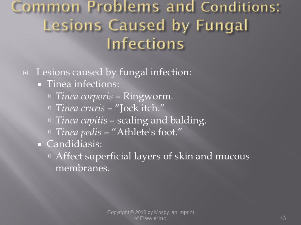 Common Problems and Conditions: Lesions Caused by Fungal Infections