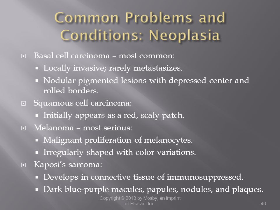 Common Problems and Conditions: Neoplasia