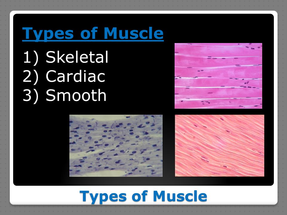 Types of Muscle Skeletal Cardiac Smooth Types of Muscle